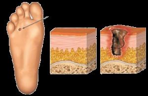 Мази для ухода за ногами при сахарном диабете