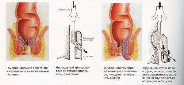 treshina-analnaya-operatsiya