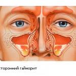 Хронический мононуклеоз