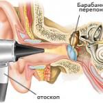 Хронический мононуклеоз лечение