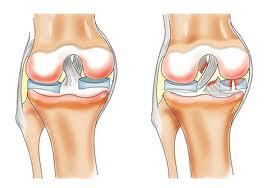 мазь из прополиса при остеоартроз м ф суставов рук