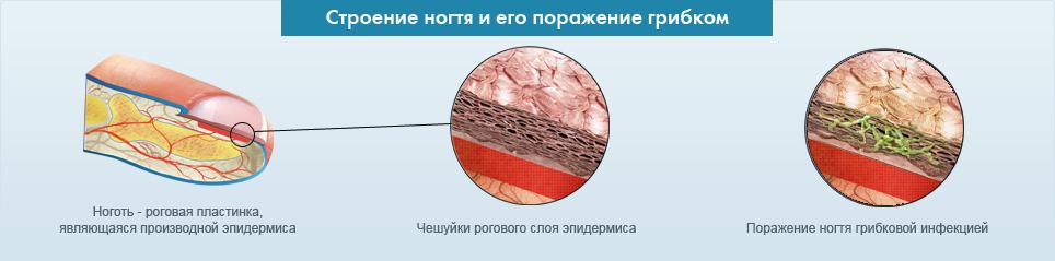 Лечение грибка ногтей в столичной