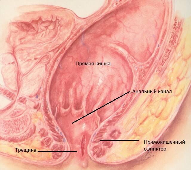 Трещины прямой кишки клиника диагностика и лечение