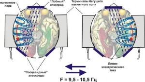 Электростимуляция мозга цена в Киеве