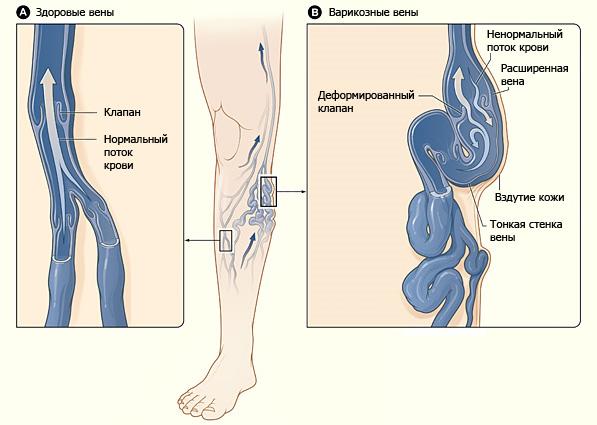 Таблетки мази от варикозной болезни ног