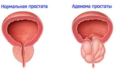 Необходимость в операции аденомы простаты