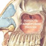 Лечение хронического мононуклеоза