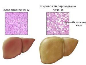 Жировой гепатоз причины клиника