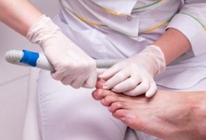 Как выглядит грибок на коже пальцев ног