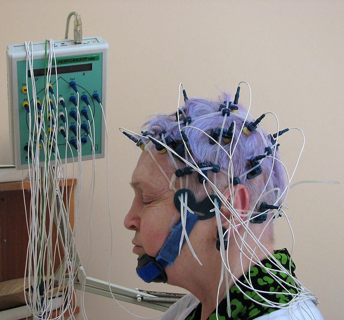 Энцефалограмма головы где сделать