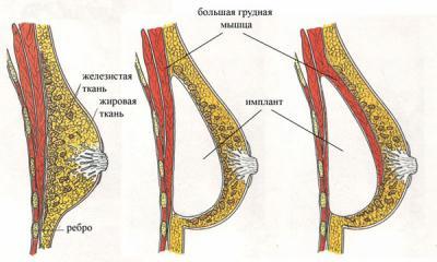 Какие травы помогают увеличивать грудь