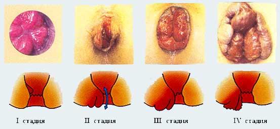 Перианальный дерматит раздражение и зуд вокруг ануса