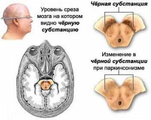 Неврологическая клиника Киев