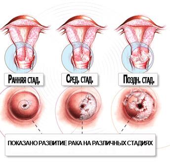 Вирус папилломы в гинекологии лечение