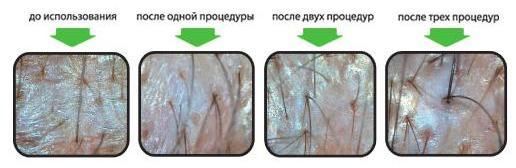 Как сделать пилинг кожи головы 152