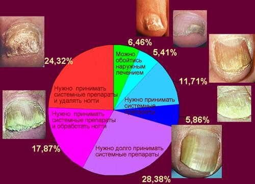 Сколько стоит лечение грибка ногтей лазером