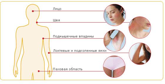 Лечение сухой экземы рук народными средствами