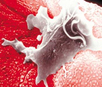 Урологические заболевания инфекционное