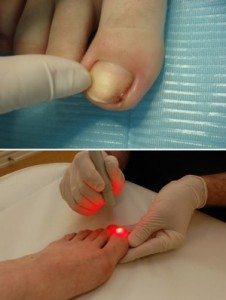 Клиника для удаления вросшего ногтя