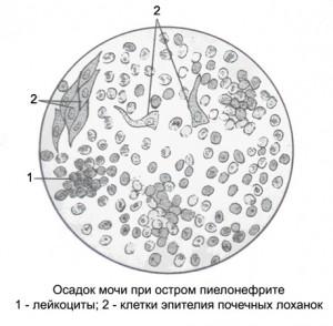 чем вывести паразитов из организма человека препараты