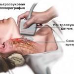 Доплерографія судин шиї та головного мозку