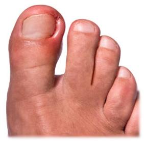 пластика вросшего ногтя
