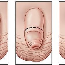 Бородавки на ногах народные методы лечения